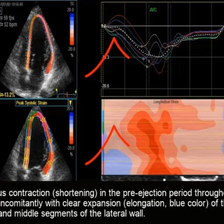 Course of Myocardial Deformation  – Strain and Strain Rate