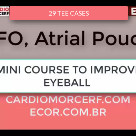 PFO and LEFT ATRIAL POUCH
